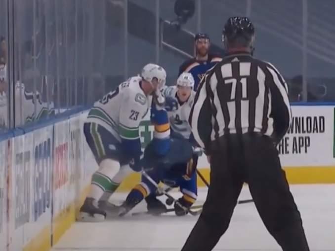 Alexander Edler koki karmivan hetken Vancouver Canucksin ja St. Louis Bluesin välisessä ottelussa, kun vastustajan luistin viilsi häntä korvaan.